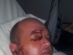 Wife's appeal to find attackers who left dad-of-two blind in one eye