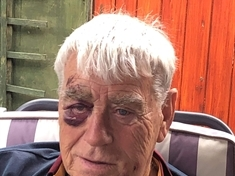 Blooded and bruised pensioner calls for attacker to be caught before he strikes again